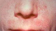 Seborrhoeic dermatitis.jpg