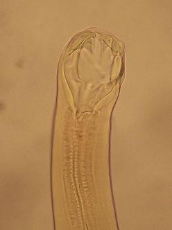 Detail ústní kapsuly měchovce lidského