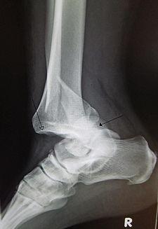 Ankledislocation.JPG