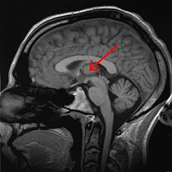 Brain chrischan thalamus.jpg