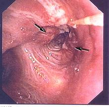 Obstruction d'une bronche par une tumeur