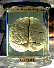A brain floating in a liquid-filled glass jar. Yellowing of the handwritten labels on the jar give the object an antique appearance.