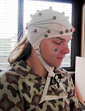 Photo of the head of a young man, with what looks like a while shower cap on his head, with a number of dark blobs scattered around it with wires attached to them.