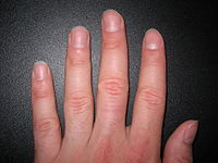 Human fingers and nails