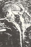 MRI-STDA.psd.jpg