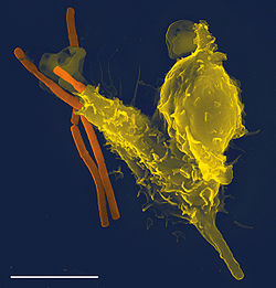 Neutrophil with anthrax copy.jpg