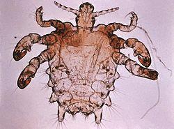 Pou du pubis (Pthirus inguinalis)