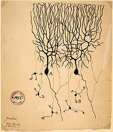 A drawing on yellowing paper with an archiving stamp in the corner. A spidery tree branch structure connects to the top of a mass. A few narrow processes follow away from the bottom of the mass.