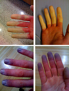 Raynaud's Syndrome.jpg