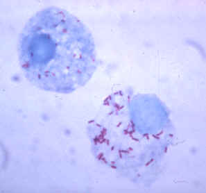 Two round cells with many tiny rod-shaped bacteria inside.