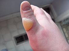 Second degree burn of the thumb
