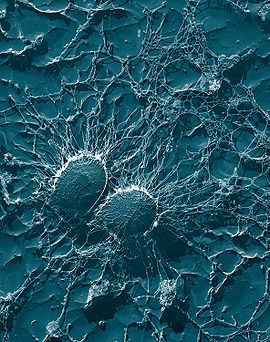 Two round bacteria that are close together and are almost completely covered in a string-like substance.