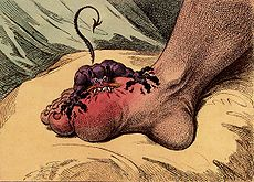 A small creature with sharp teeth is biting into a swollen foot at the base of the big toe