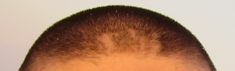 Tricotillomania.png
