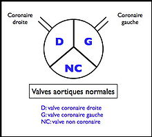 Valves aortiques normales.jpg
