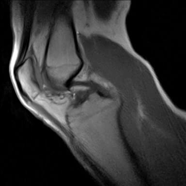 Real-time MRI - Knee (central).ogv