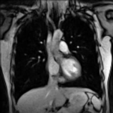 Real-time MRI - Thorax.ogv