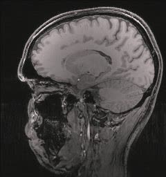 MRI.ogg